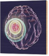 Brain Cancer Treatment Wood Print