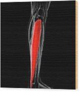 Calf Muscle Wood Print