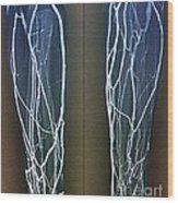 Forearm Veins, X-ray Wood Print