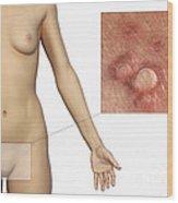 Genital Warts Wood Print