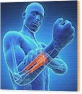 Human Arm Pain Wood Print