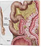 Illustration Of Diverticulosis Wood Print by Stocktrek Images