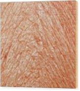 Lichen Sclerosis Wood Print
