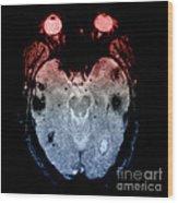 Mri Of Amyloid Angiopathy Wood Print