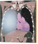 Pleural Effusion In Mesothelioma Wood Print