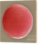 Red Blood Cell In Hypotonic Solution Wood Print