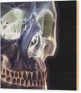 The Skull And Paranasal Sinuses Wood Print