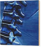 Thoracic Spine Wood Print