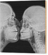 X-ray Kissing Wood Print