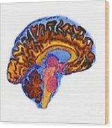 Normal Human Brain, Mri Scan Wood Print