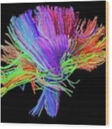 White Matter Fibres Of The Human Brain Wood Print
