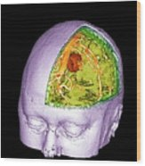 Brain Tumour Wood Print