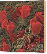 Blood Clot Wood Print