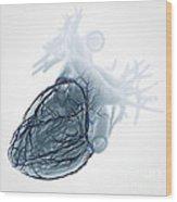 Coronary Blood Supply Wood Print