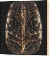 Brain With Blood Supply Wood Print
