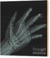 Bones Of The Hand Wood Print