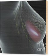 Breast Implant Wood Print