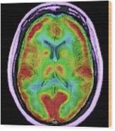 Normal Brain Blood Flow Wood Print