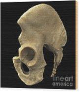 Pelvic Bones Male Wood Print