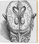 Vesalius: Brain, 1543 Wood Print
