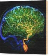 Brain Blood Vessels Wood Print