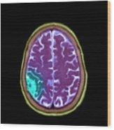 Meningioma Tumour Wood Print