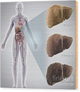 Stages Of Liver Disease Wood Print