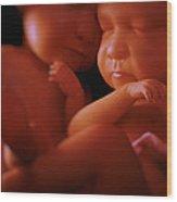Twin Babies Wood Print