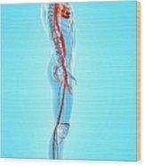 Human Arteries Wood Print