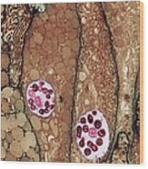 Chlamydia Infection Tem Wood Print