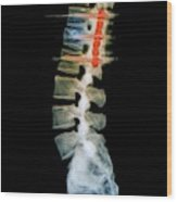 Pinned Spinal Fracture Wood Print