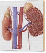 Polycystic Kidney Wood Print