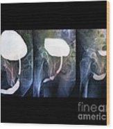 Voiding Cystourethrogram, X-rays Wood Print