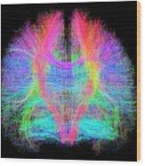 White Matter Fibres Of The Human Brain Wood Print