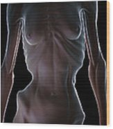 Anorexia Wood Print