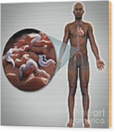 Sleeping Sickness Infection Wood Print