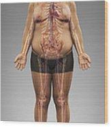 Obesity Wood Print