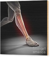 Medial Tibial Stress Syndrome Wood Print
