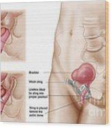 Anatomy Of Bladder Suspension Procedure Wood Print