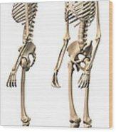 Anatomy Of Male Human Skeleton, Side Wood Print