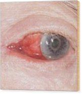 Bleeding Eye Wood Print