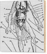 Bloodletting Chart, 1517 Wood Print