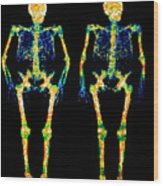 Bone Densitometry Scans Of The Skeletons Of Twins Wood Print