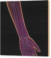 Bones Of The Lower Arm Wood Print