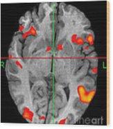 Brain Activity During Language Task, 2 Wood Print