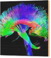 Brain Pathways Wood Print