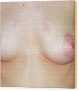 Breast Asymmetry Wood Print