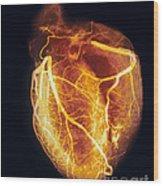 Colored Arteriogram Of Arteries Of Healthy Heart Wood Print