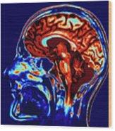 Coloured Mri Scan Of Brain In Sagittal Se Wood Print