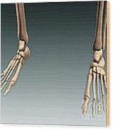 Conceptual Image Of Bones In Human Legs Wood Print